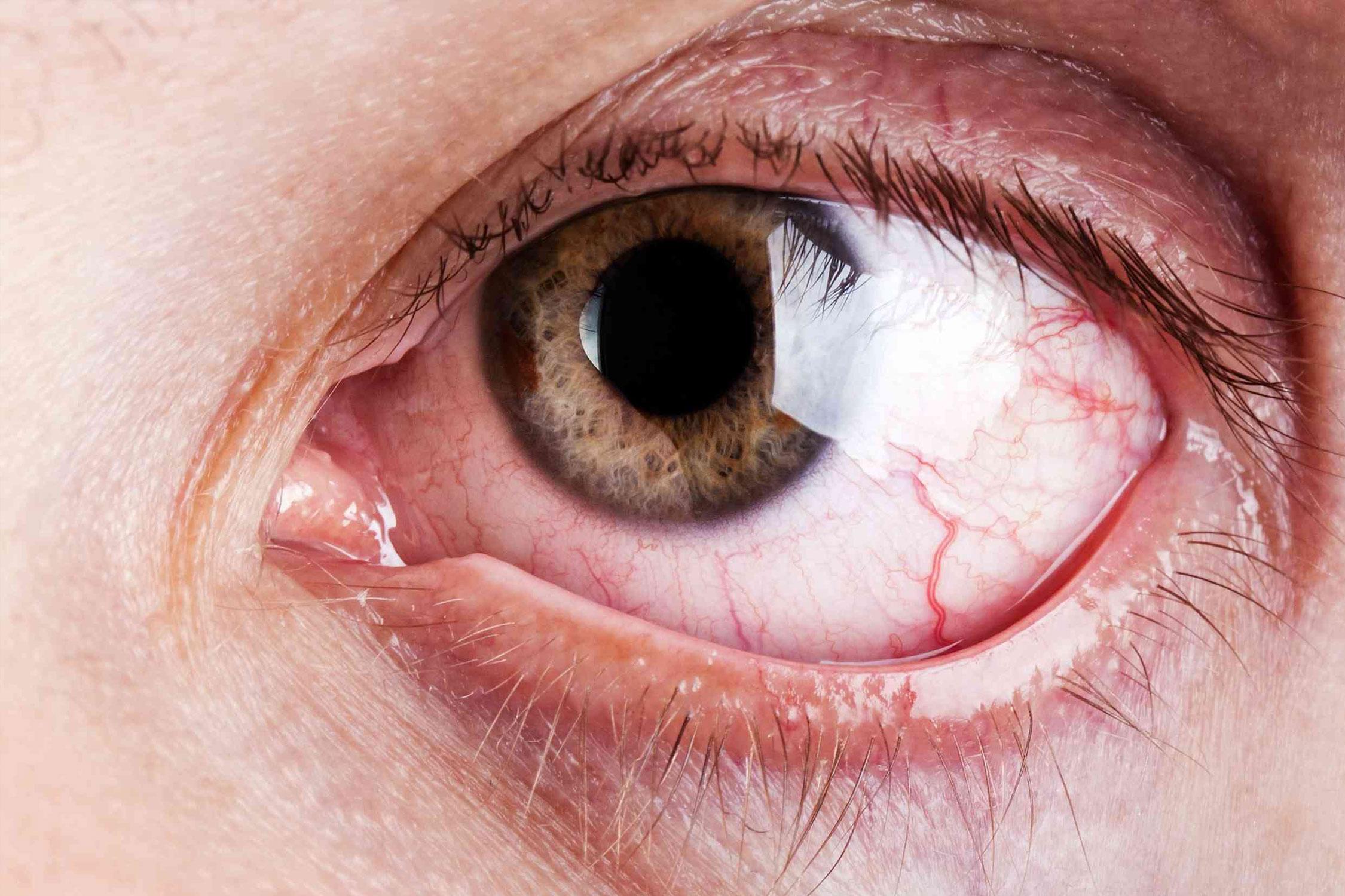 Enfermedades del ojo que pueden ocasionar ceguera